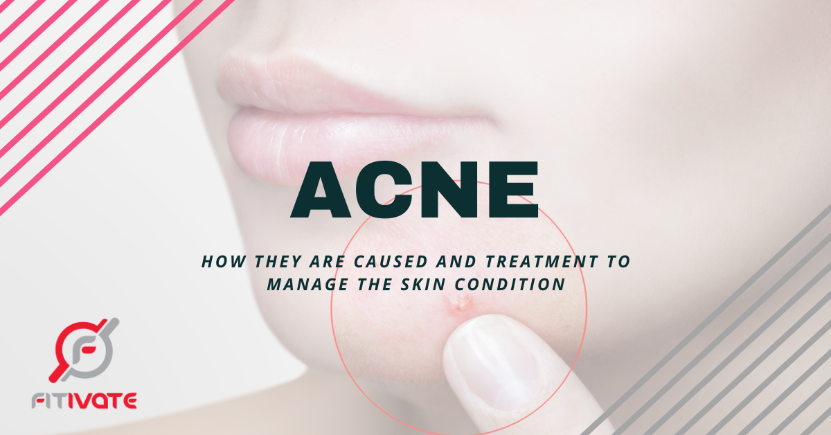 What is Acne,Acne Causes, Acne treatment
